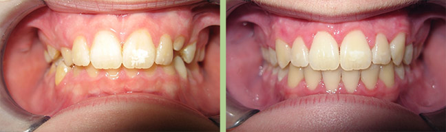 Image Orthodontics - Before and After Photos